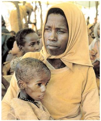 In developing nations, more than half of all deaths among children under five years old are due to malnutrition. Malnourished children who survive may experience stunted growth, illness, and lifelong malnourishment. [Photograph by Bruce Brander. National Audubon Society Collection/Photo Researchers, Inc. Reproduced by permission.]