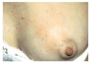An inflamed, painfully tender breast combined with flu-like symptoms may indicate that a nursing mother has mastitis. Frequent feeding or pumping from the affected breast can help, as can rest and drinking lots of fluids. [Photograph by Dr. P. Marazzi. Photo Researchers, Inc. Reproduced by permission.]