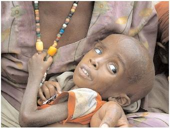 When inadequate food supply in a region causes excessive mortality, the region is in a state of famine. Economic, political, and social forces contribute to the situation. [AP/Wide World Photos. Reproduced by permission.]
