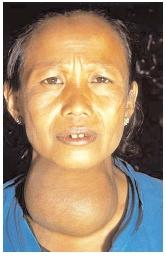 An example of grade III (large and visible) goiter. Most cases of goiter in the developing world are due to an iodine deficiency. Unable to meet the body's hormonal needs, the thyroid becomes enlarged to compensate. [© Lester V. Bergman/Corbis. Reproduced by permission.]